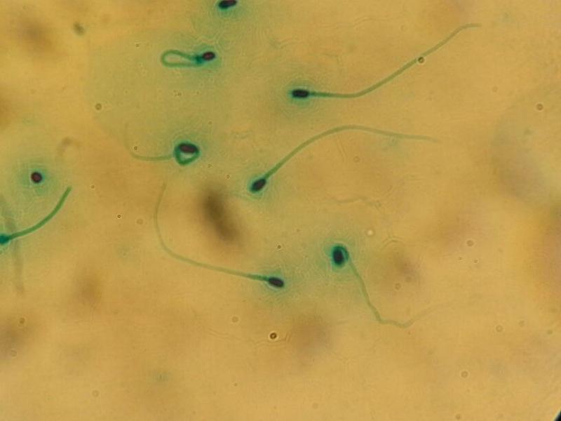 Sperm Donasyonu - Sperm Bağışı